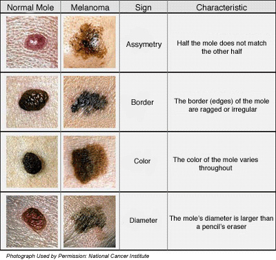 melanoma skin cancer. Melanomas vary greatly in